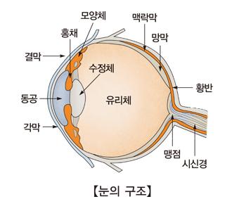 망막아세포종